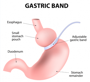 gastric band (1)
